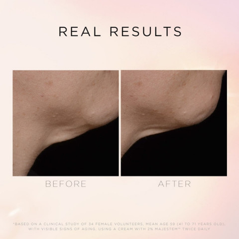 Фото3 Cosmedix Illuminate Lift Neck Décolleté Treatment / Крем Для Кожи Шеи и Декольте